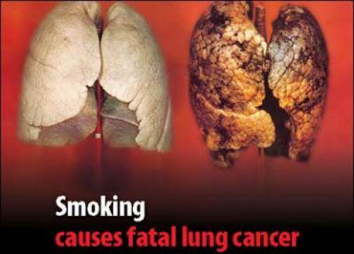 contro il fumo polmone